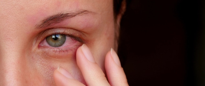الاعراض التي تظهر في من تصيبه التهابات في قرنية العين